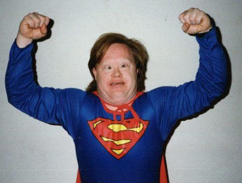Retarded Vs Down Syndrome